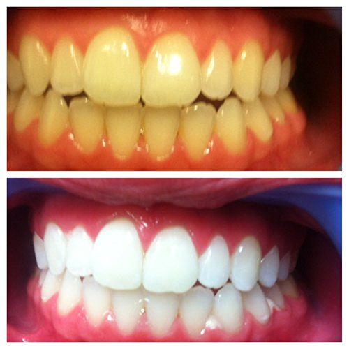 opalescence 15 teeth whitening instructions